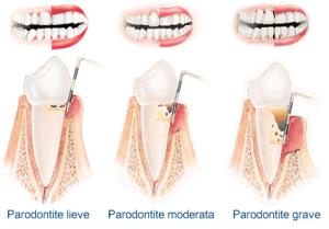 paradontite1